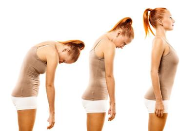 3 Tips Perbaiki Postur Tubuh untuk Jaga Kesehatan
