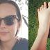 29χρονη πήγε σε spa ψαριών και μετά της ακρωτηρίασαν και τα 5 δάκτυλα των ποδιών της