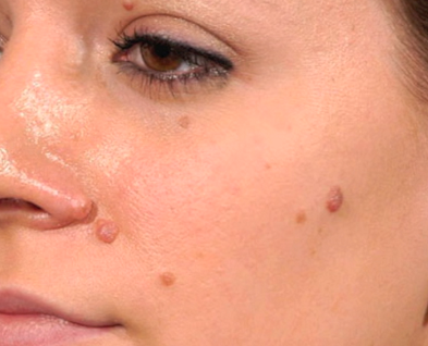 Perawatan wajah untuk menghilangkan tahi lalat