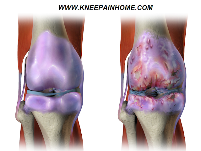 How Not to Get Knee Arthritis