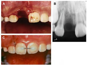 Tooth Avulsion
