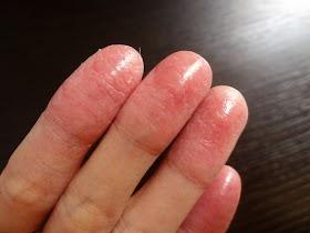 指の皮がむけて痛い!治らない手荒れの原因や6つのケア方法
