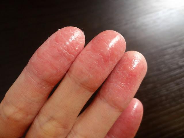進行性指掌角皮症(しんこうせいししょうかくひしょう)とは?