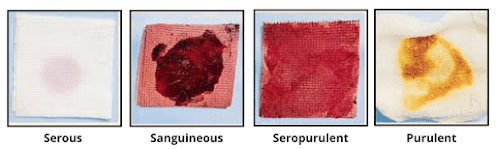 Types of Wound Drainage - care of wound drainage