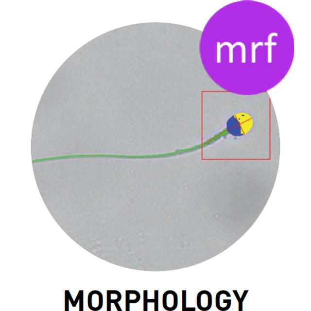 Morfologi sperma normal