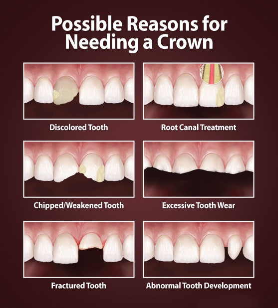 when tooth need crown