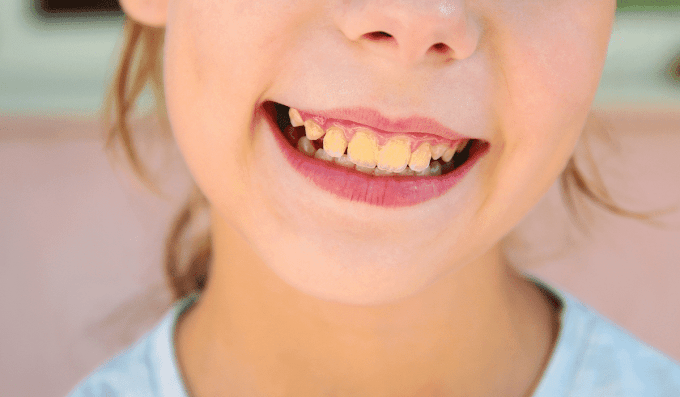 Tooth Discoloration Causes: How to Avoid Teeth Staining?