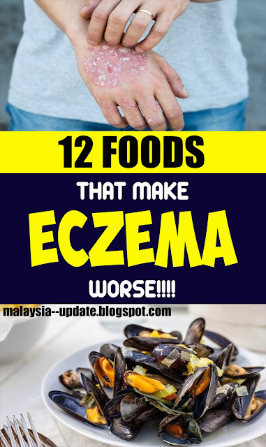 12 Foods that Make Eczema Worse
