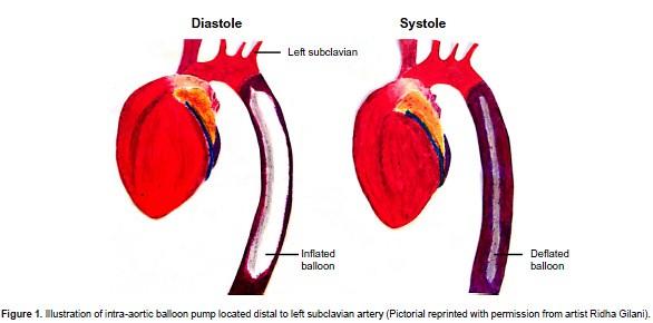Asuhan Keperawatan Pada Pasien Syok Kardiogenik
