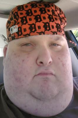 Mann dickes Gesicht mit fettem Doppelkinn lustig