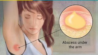 skin abscess under armpit