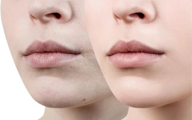 Les 10 meilleurs alternatives naturelles pour hydrater la peau sèche