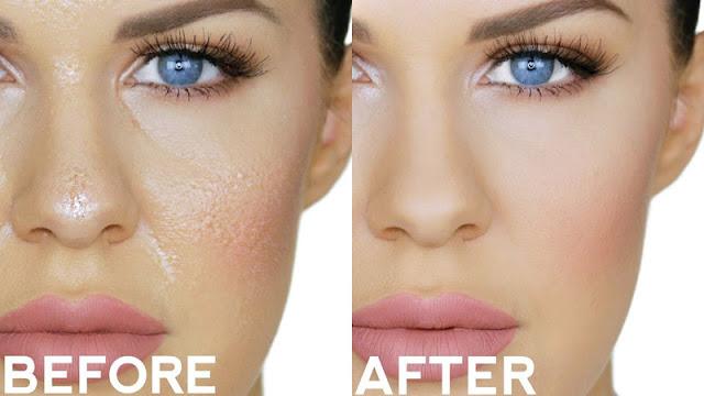 Se a sua pele é oleosa, você já passou por momentos em que a sua maquiagem derreteu e ficou transferindo e com uma aparência de óleo. Isso sem dúvidas é muito ruim, mas para que a sua pele não fique oleosa, é preciso ter alguns cuidados diários, mas principalmente antes de aplicar a base, passar uma água micelar para retirar qualquer oleosidade  do seu rosto. Depois disso, você passa um cubo de gelo pelo seu rosto. O gelo vai diminuir a circulação sanguínea do seu rosto e consequentemente a transpiração vai diminuir e também vai ajudar a fechar os poros. Depois você seca bem o rosto e em seguida aplica um hidratante facial próprio para pele oleosa para ajudar a controlar a oleosidade.