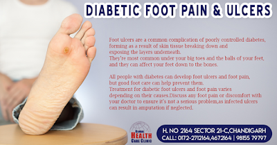 Diabetic Foot Surgery in Chandigarh