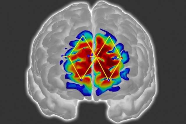 hastaların ağrı seviyelerini beyin sinyalleriyle tespit etmek