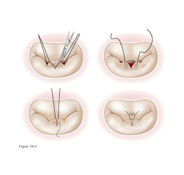 Triangular resection.