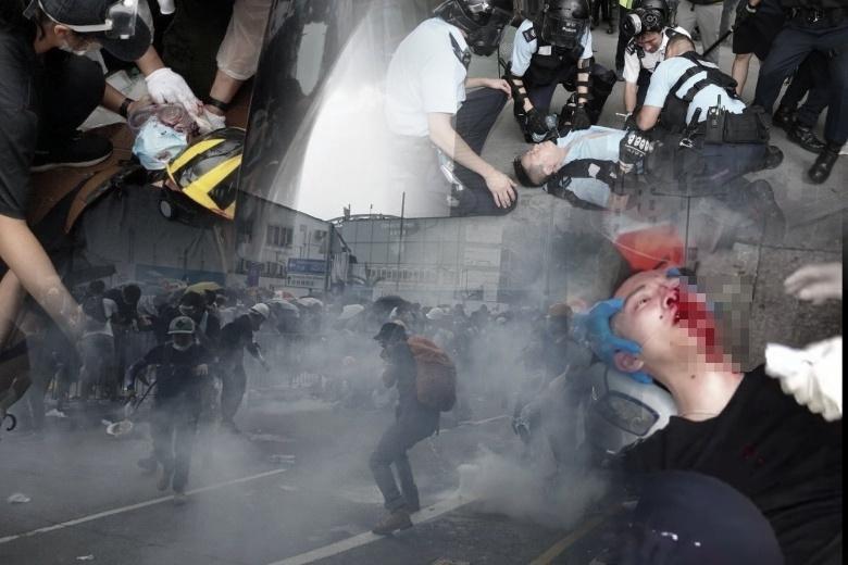 Setidaknya 22 Orang Terluka Akibat Bentrokan Antara Demonstran dengan Polisi