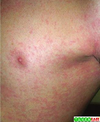 Scarlatiniform rash in scarlet fever