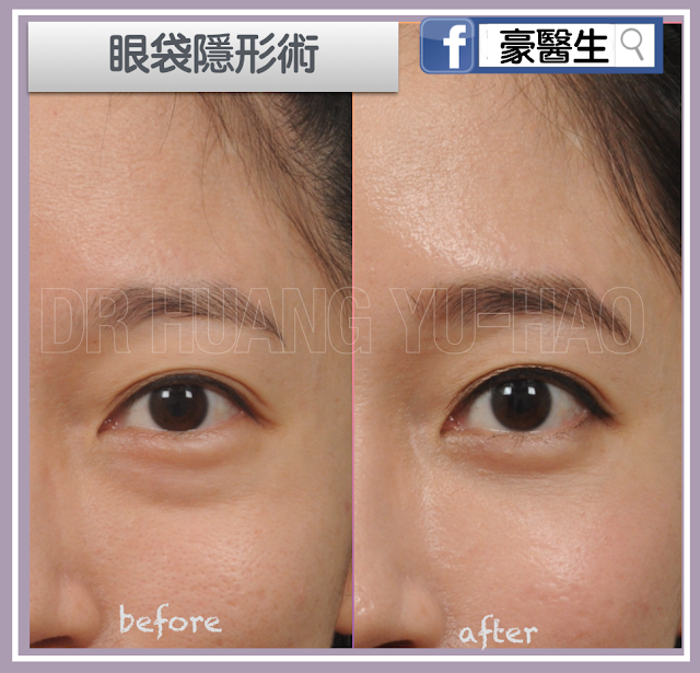 眼袋消除隱形手術-內開式