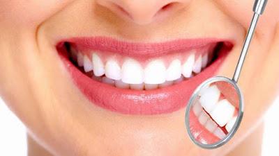 Sonrisa perfecta con implantes