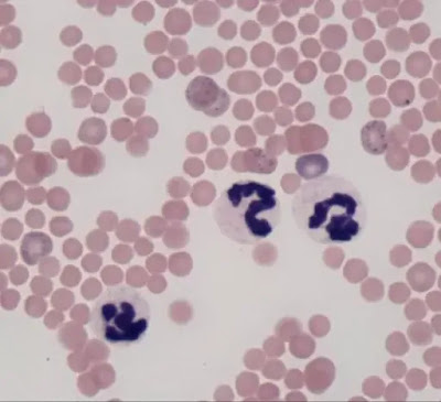 Different types of thalassemia, symptoms and treatment explained 2020