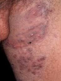 obat gatal bentol merah pada selangkangan dan bokong secara alami