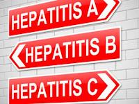 Apa Perbedaan Hepatitis A, Hepatitis B Dan Hepatitis C Yang Kamu Harus Tahu