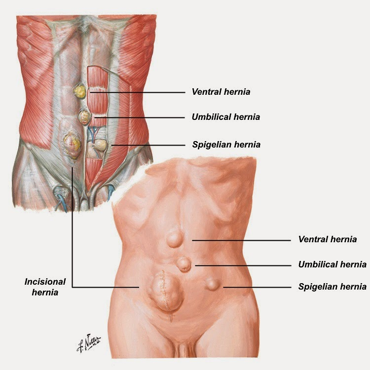 Pengertian Penyakit Hernia, Gejala, Penyebab, Pencegahan dan Pengobatan