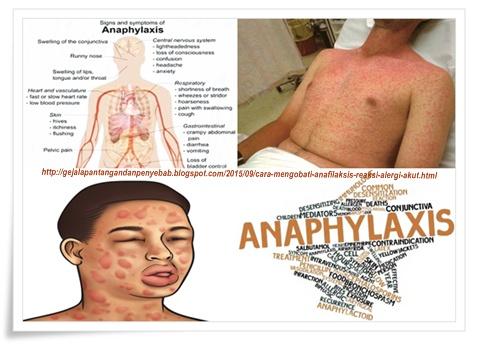 Cara Mengobati Anafilaksis (Reaksi Alergi Akut) ~ Gejala ...