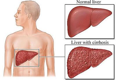 লিভাৰ চিৰচিচ কিয় হয়? লক্ষণ আৰু সাৱধানতা- chirrhosis in liver in Assamese