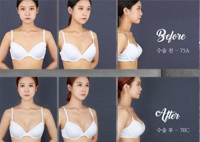 foto sebelum dan sesudah operasi payudara korea di wonjin