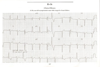 MBBS Medicine (Humanity First): ECG Interpretations