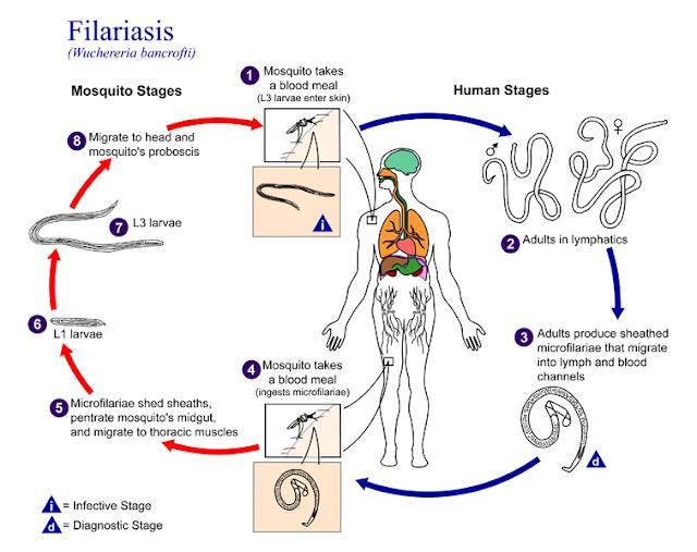 फाइलेरिया रोग ( Filariasis ) क्या है ? What is Filariasis?