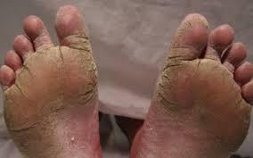 Obat gatal eksim menahun di kaki paling mujarab