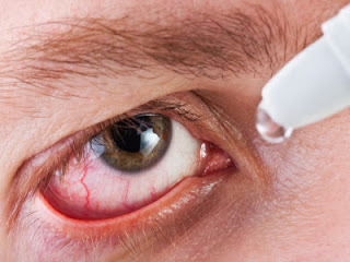 A person with pink eye putting in eye drops