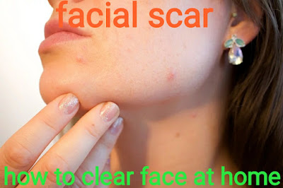 https://www.ayurvedaupachar.in/2019/07/facial-scar-treatment-information-home-remedies.html