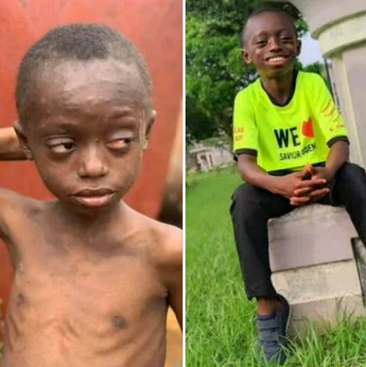 Amazing transformation! Young boy branded a witch in Akwa Ibom, shunned and left to die, thrives after testing positive for HIV