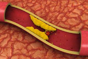 Colesterol: o consumo em excesso é o que faz mal à saúde