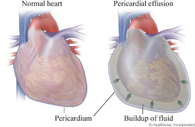 Pericardial effusion causing difficulties in breathing