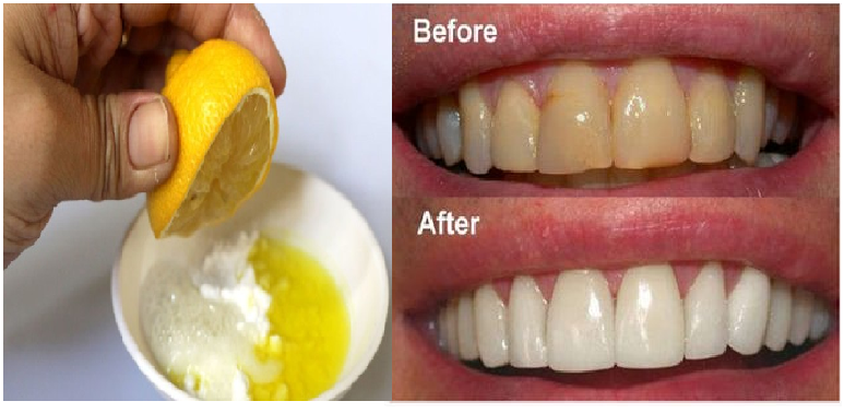 Sudah Terbukti Gigi Putih Hanya Dalam Waktu 1 Menit Saja Nyimak Saja