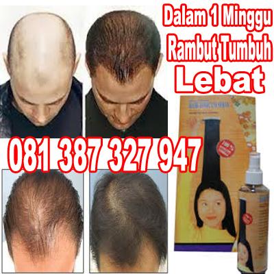 Hasil Setelah Menggunakan Hair Tonicum Serum, Obat Penumbuh Rambut Herbal Alami Super Cepat HAIR TONICUM, obat penumbuh rambut, penumbuh rambut botak