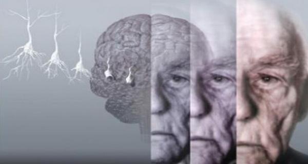 pierderea memoriei poate fi inversata