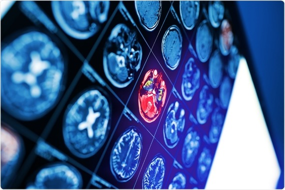 MRI scans show how ADHD medication affects brain structure in children