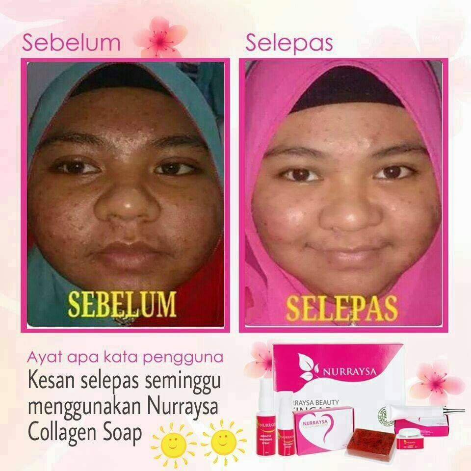 Nurraysa Beauty Bangi Ok Ke Sabun Collagen Ni Colagen Jom Saye Kongsikan Testimoni2 Lain Untuk