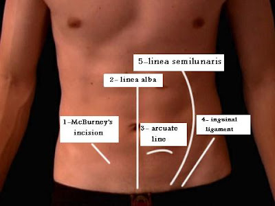 Lines On Anterior Abdominal Wall