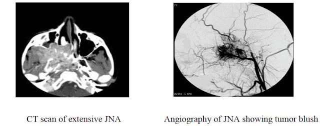 nasopharyngeal-angiofibroma-ct-angiography