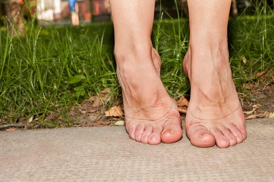 Artritis en pies
