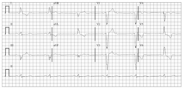 ECG of second degree block type II (2:1 AV block) with LBBB