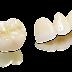 Địa chỉ bọc răng sứ Cercon uy tín