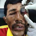 Pria Yang Aniaya Tukang Ojek Berhasil Diamankan Polsek Tanah Merah